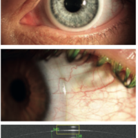 scleral_ideal_fit_1
